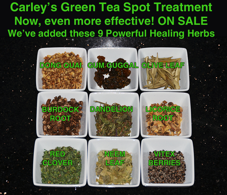 Carley's Green Tea Spot Treatment